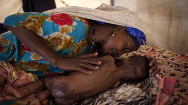 1,4 millones de niños en riesgo de desnutrición en Somalia