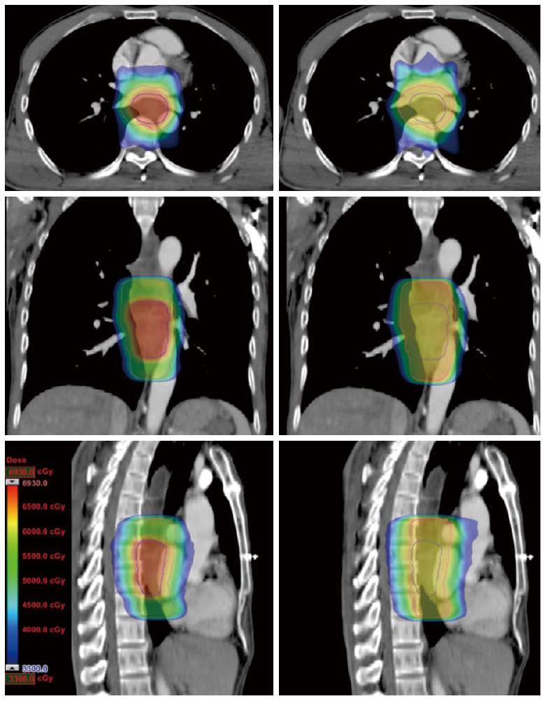 食道 癌 放射線 治療