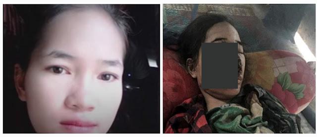 Soth Rey, jeune fille de Siem Reap à peine âgée de 18 ans, et dont le visage est attaqué par une nécrose