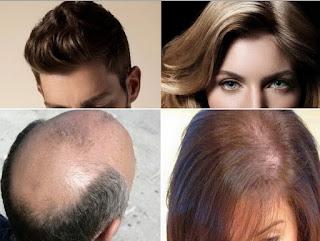 Rambut botak dan rontok pria dan wanita