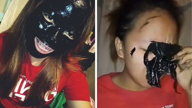 Girl Lost Her Eyebrows When She Used The Famous Blackheads Mask
