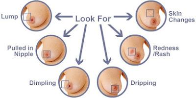 A Breast Cancer Symptom - Be Aware