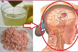 Natural Remedy That Will Make Your Migraine Disappear In Just 10 Minutes!