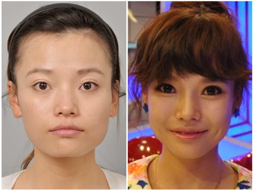 cheekbone+reduction+surgery,+v+line+surgerykorea+(2).jpg