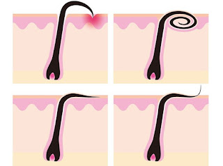 7 solutions naturelles pour éliminer les poils incarnés