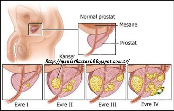 prostat hastalığı nedir