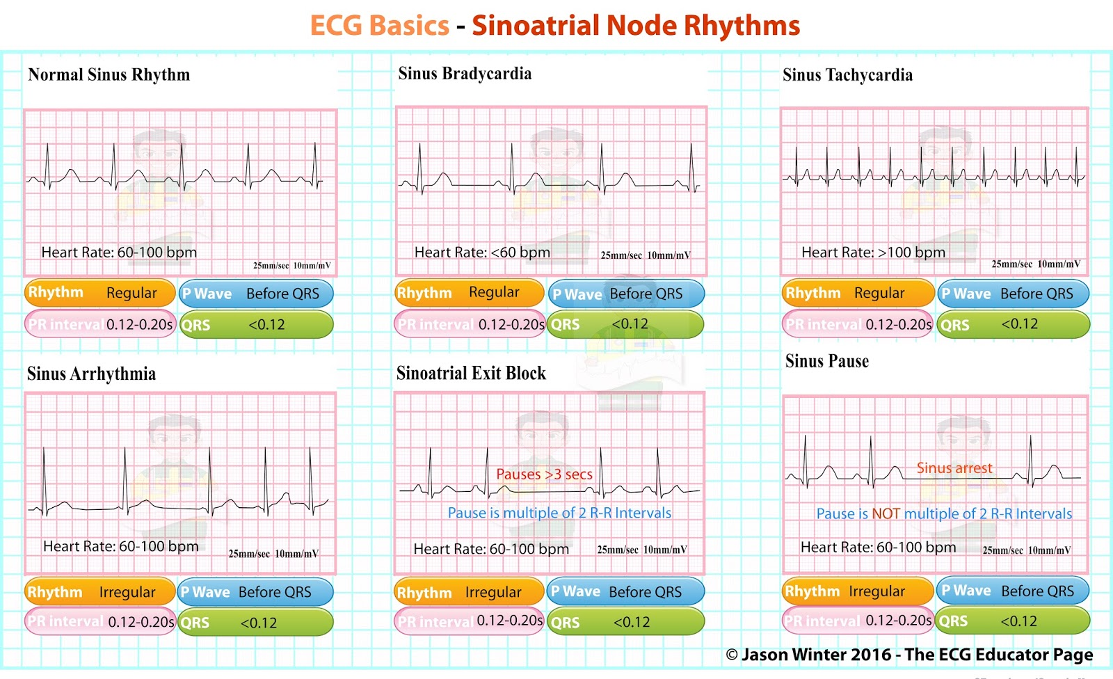 Ecg Educator Blog Sinoatrial Node Rhythms