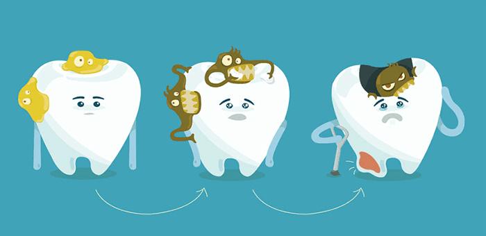 infección en los dientes