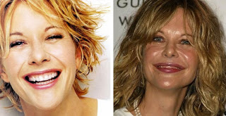 Meg Ryan Plastic Surgery Before And After Facelift And Botox Star