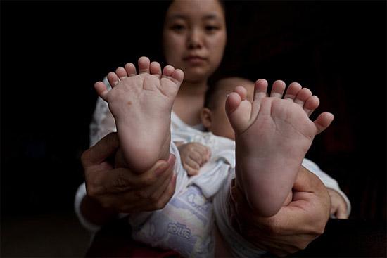 Bebê chinês com Polidactilia 2