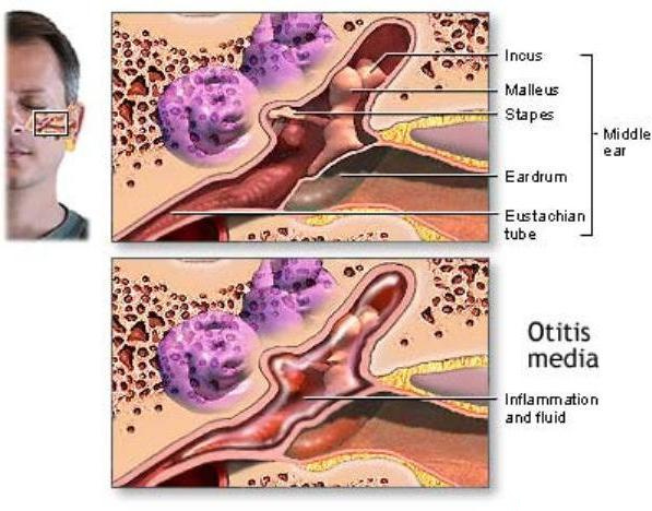 Acute ear infection, Otitis Media