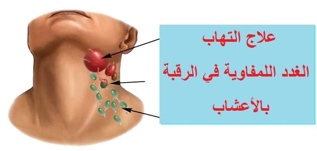 علاج التهاب الغدد اللمفاوية في الرقبة بالاعشاب