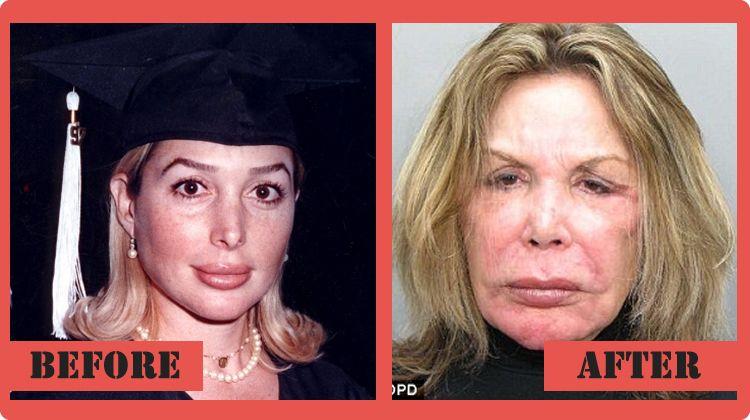 Celebrity Plastic Surgery Photos - Celebrity plastic surgery