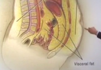 operație pentru a elimina grăsimea din spate când să mănânci grăsime pentru pierderea în greutate