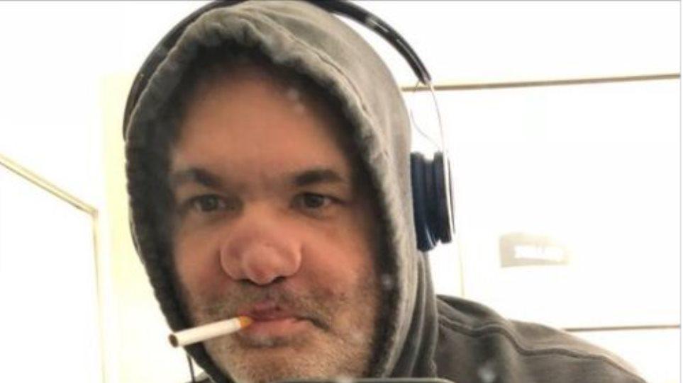 Αμερικανός κωμικός μιλά για την «φρικτά παραμορφωμένη μύτη του» μετά από 30 χρόνια χρήσης ναρκωτικών