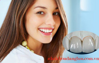 Mức độ bền của răng sứ thẩm mỹ là bao lâu?