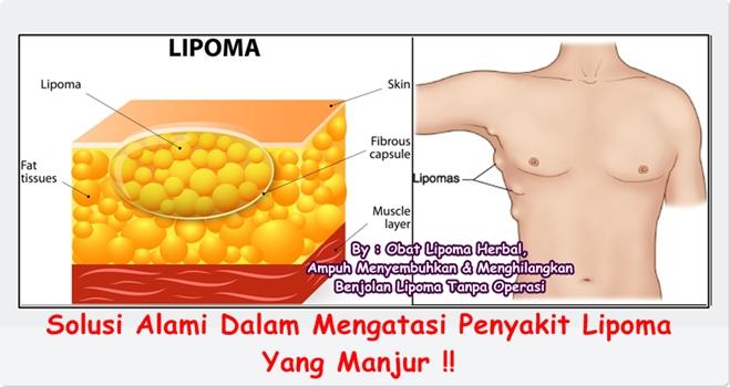 Obat Lipoma Herbal, Ampuh Menyembuhkan & Menghilangkan Benjolan Lipoma Tanpa Operasi
