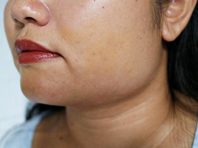 Mengkoreksi Tekstur Wajah