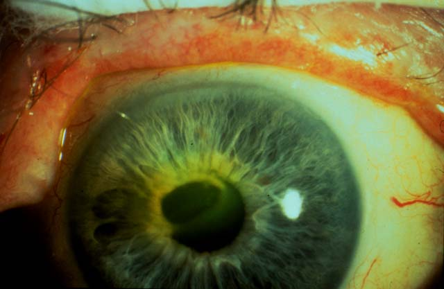 Photos for Herpes Zoster Ophthalmicus Infection ~ YOUNG ...