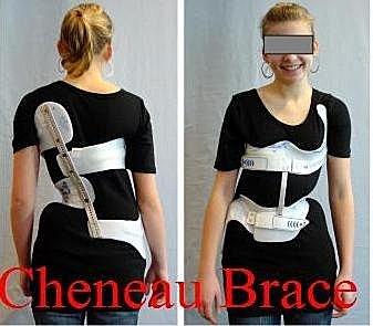 脊椎側彎, 脊椎側彎背架, 脊椎側彎矯正, 脊椎側彎治療,脊椎側彎物理治療