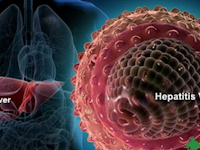 An Overview of Hepatitis A, B, C, D, and E