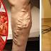 Mis piernas estaban llenas de varices y un médico me dijo que use el tomate de esta manera