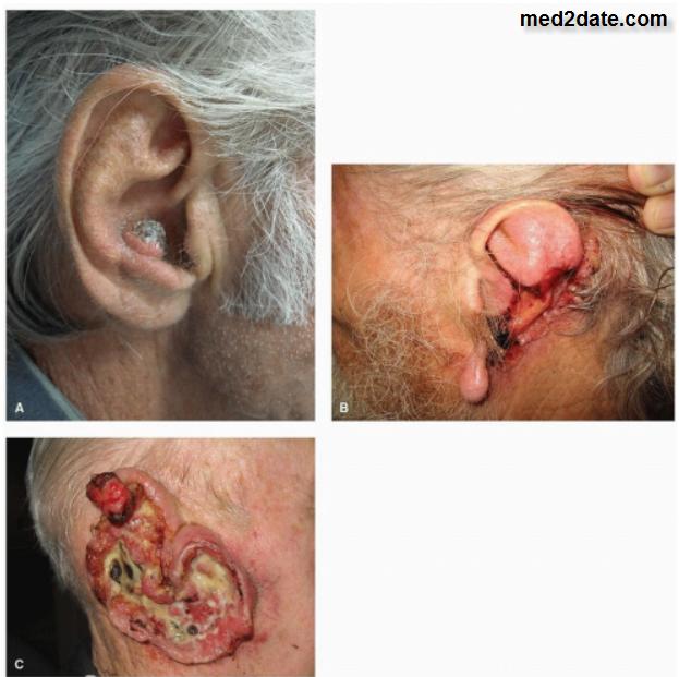 سرطان-الأذن-الوسطى-والقناة-السمعية