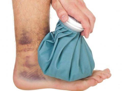 علاج الكدمات والالتواءات بالاعشاب والطب البديل .