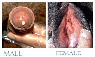 Kencing nanah pada pria dan wanita