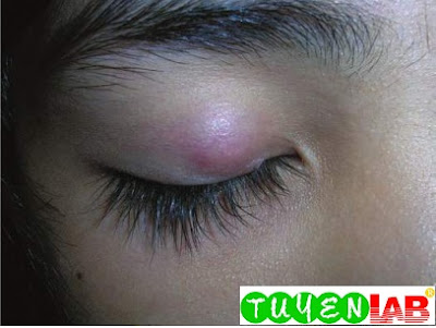 Chalazion present for 4 months on the upper eyelid of a young girl with minimal symptoms but cosmetically unappealing