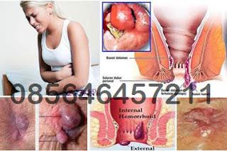 Harga Obat Wasir (Hemoroid) Dalam Berdarah