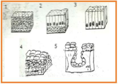 Image result for epitel alveolus majemuk