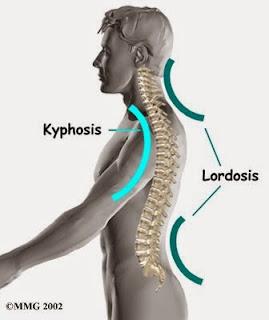 gerinc természetes helyzete, helyes testtartás, lodózis, kifózis, gerinc természetes görbüelte