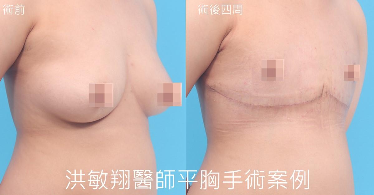 一字型平胸手術案例45度