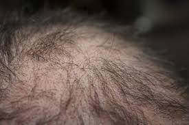 Cara Mengatasi Rambut Rontok Berlebihan Dari Akar Dengan Bahan Alami Lidah Buaya