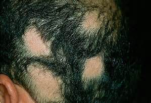 Hair Loss- Are You Suffering From Alopecia Areata?