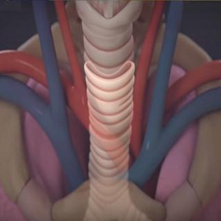 Traqueomalácia - Vivendo com laringomalácia