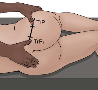 Suggested Location of PM Trigger Points - El Paso Chiropractor