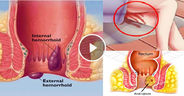 Check out the warning and early signs of anal cancer before it's too late! Must read!