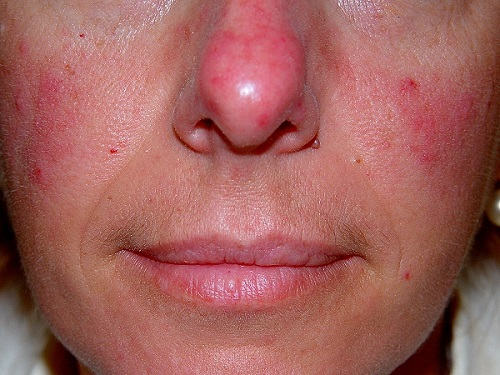 tratamiento para la dermatitis rosacea