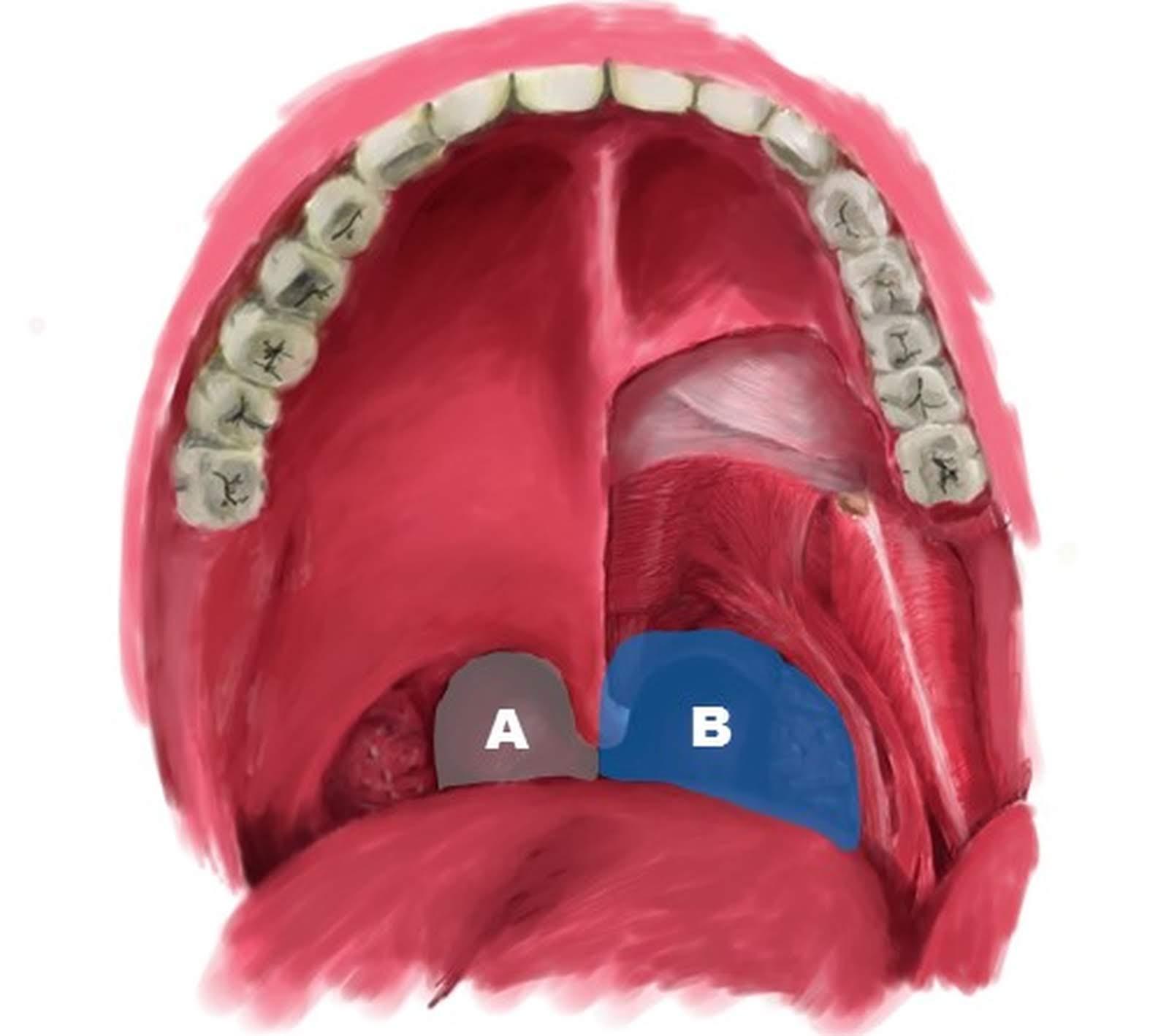 声 扁桃 腺 手術