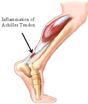 Pictures Of Tendonitis 13