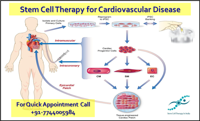 Stem Cell Therapy for Cardiovascular Disorder in India