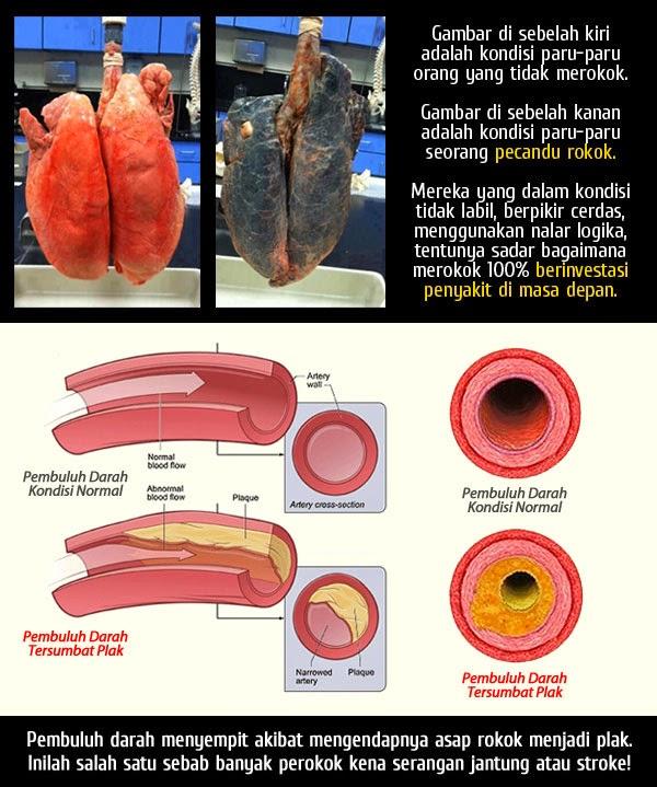 kondisi paru-paru perokok,kanker paru,akibat merokok