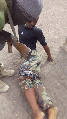 Photos: Nigerian soldier escapes death after getting shot by Boko Haram