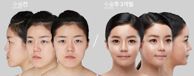 wonjin beauty medical group plastic surgery case undercover 1