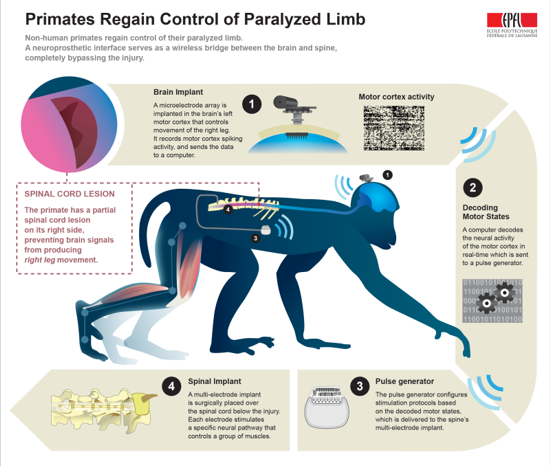 The first wireless brain implant which enables paralysed primates to walk again