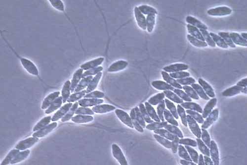 Protista mirip jamur: Labyrinthulomycetes Labyrinthula minuta