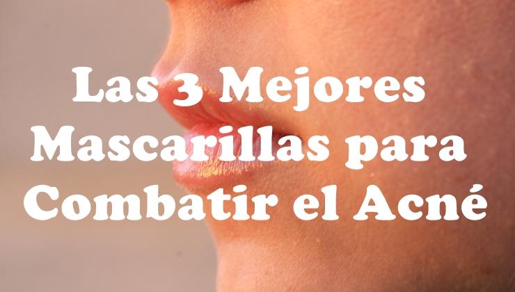 cómo eliminar el acné