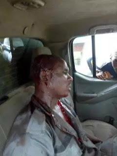 AN UNIDENTIFIED CUSTOMS OFFICIAL WHO HAS BEEN ATTACKED BY A CLOWD FOR GOING AFTER SUSPECTED SMUGGLERS